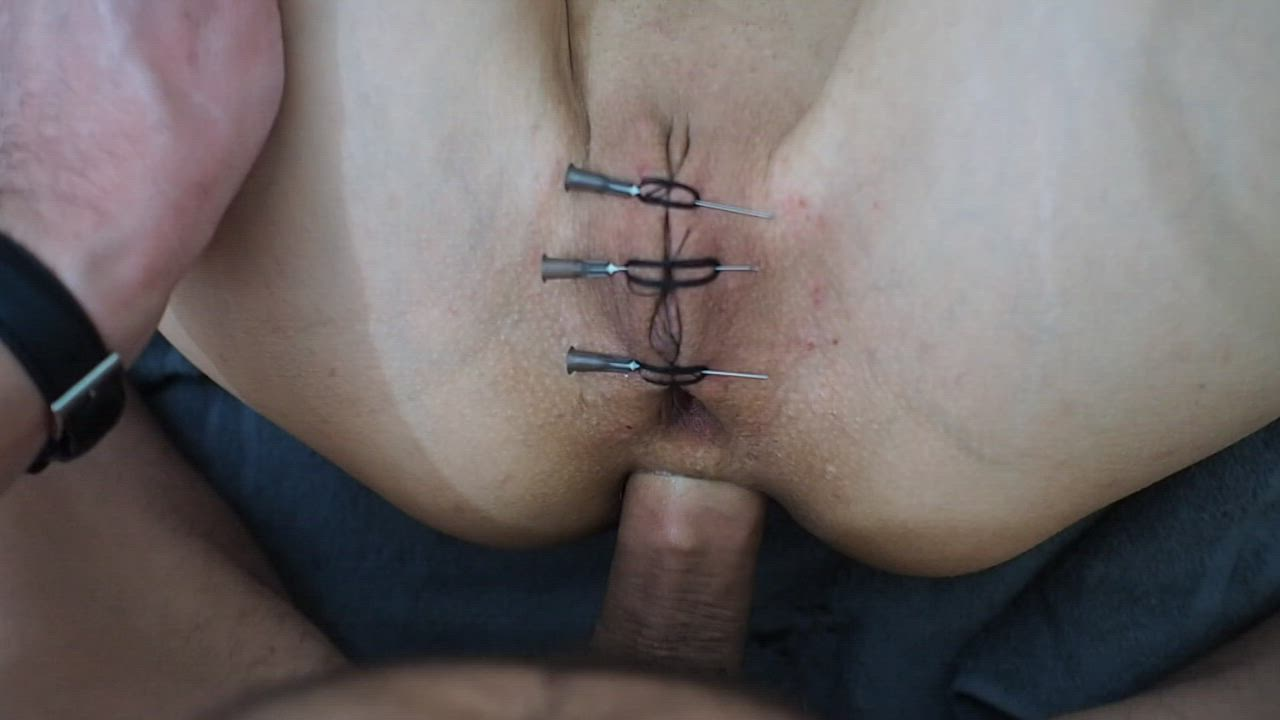 Needles and anal